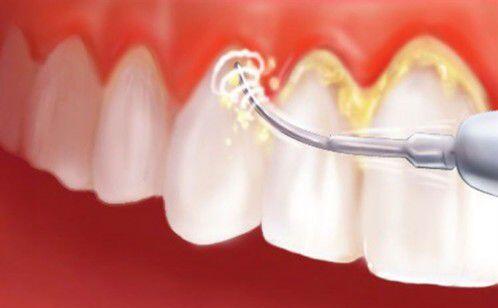 Tác hại khi không lấy cao răng cho trẻ