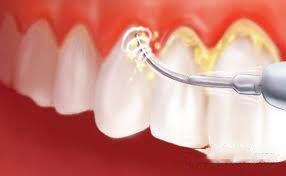 Vôi răng là gì ?