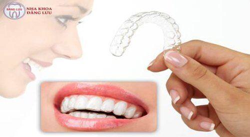 Niềng răng không mắc cài 3D Clear Aligner 1