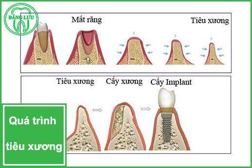 xương hàm thế nào mới đủ tiêu chuẩn cấy ghép Implant