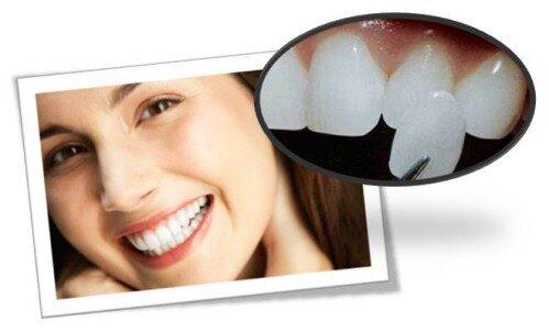 Yếu tố giúp gắn chặt răng giả bền bỉ