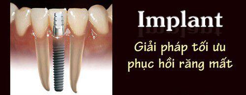 giải pháp trồng răng tối ưu