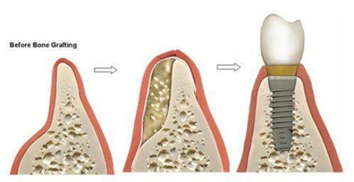 Yếu tố tự thân quan trọng trong cấy ghép Implant