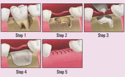 Ghép xương nâng xoang trong implant